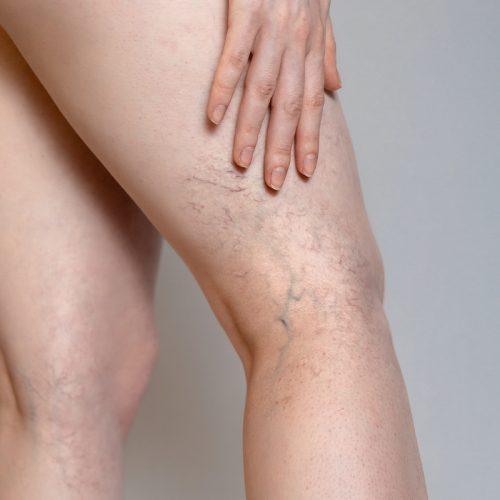 MDTouchFl Spider Veins Treatment