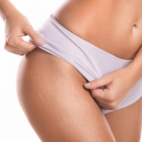 MD Touch Stretch Marks & Scars Treatment